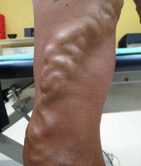 Larger varicose veins
