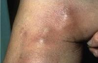 Superficial Venous Thrombophlebitis SVT
